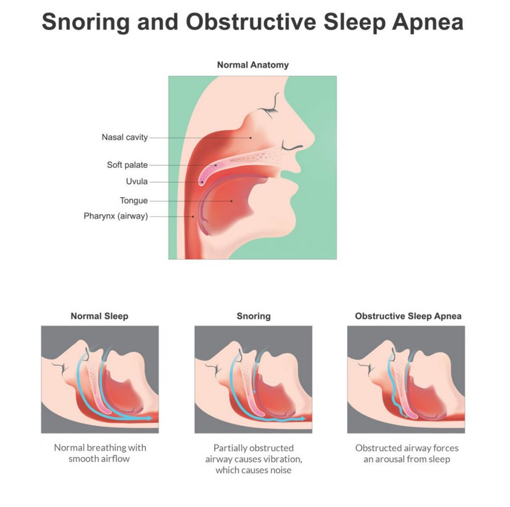 The health effects of snoring
